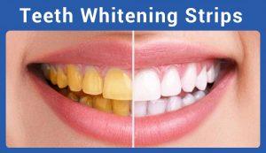crest teeth whitening strips